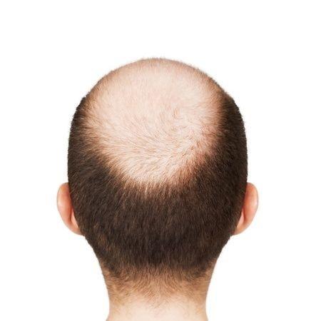 La greffe de cheveux : une technique efficace et durable !